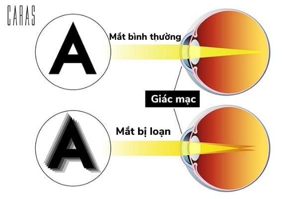 dấu hiệu loạn thị