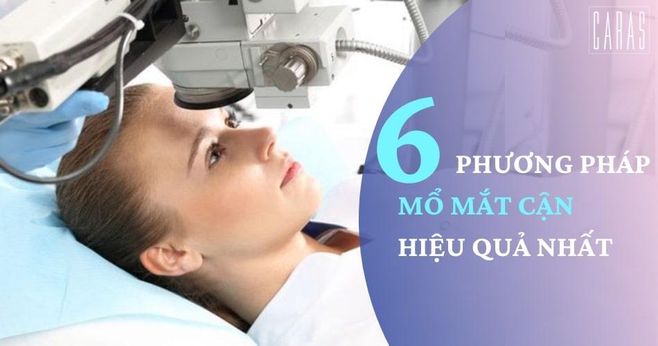 Cẩm nang quan trọng cần biết về phẫu thuật mắt cận thị